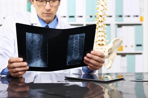 Arzt aufsuchen bei akutem Hexenschuss